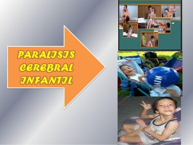 Lesión neurológica no progresiva producida durante la etapa prenatal, perinatal y postnatal, caracterizadas por disfunción...