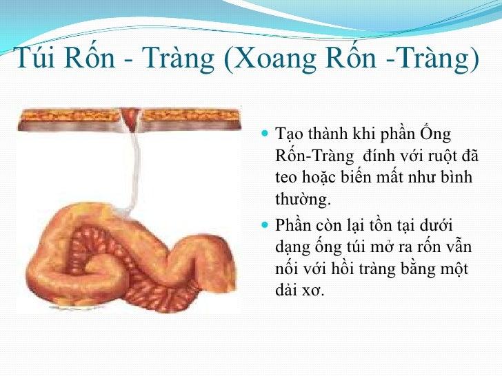 Túi Rốn - Tràng (Xoang Rốn -Tràng) <br />Tạo thành khi phần Ống Rốn-Tràng đính với ruột đã teo hoặc biến mất như bình thư...
