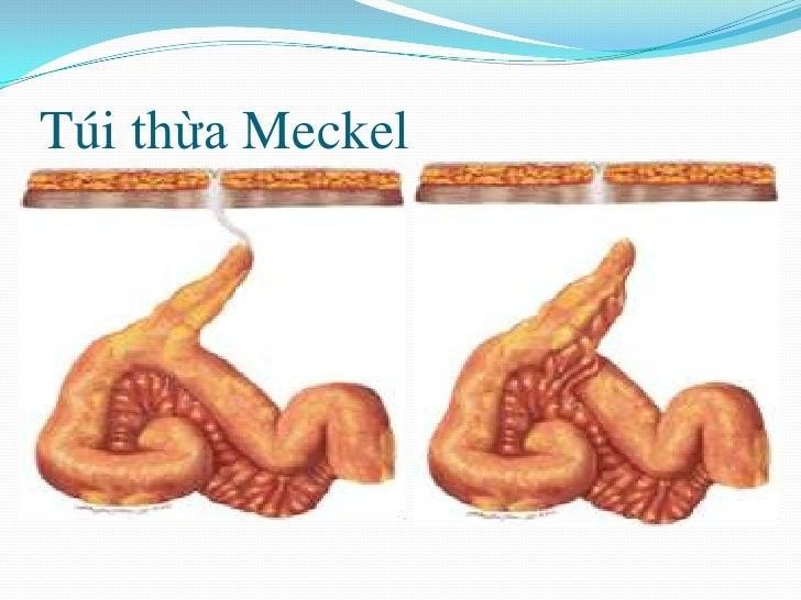 TúithừaMeckel<br />