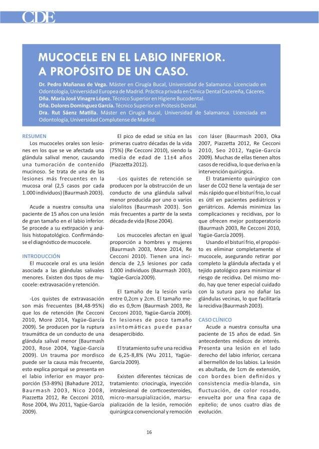 MUCOCELE EN EL LABIO INFERIOR.   A PROPÓSITO DE UN CASO.   Dr.  Pedro Mañanas de Vega.  Máster en Cirugía Bucal,  Universi...
