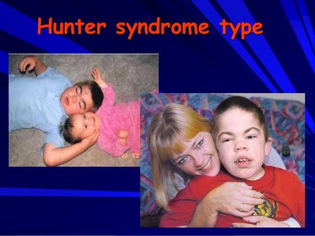 19 Hunter syndrome