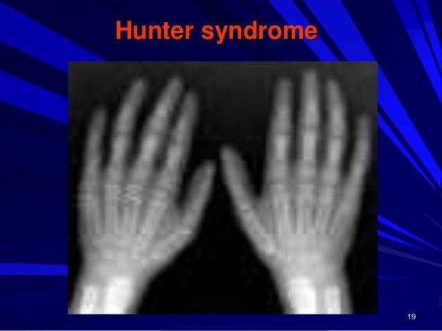 20 Sanfilippo syndrome