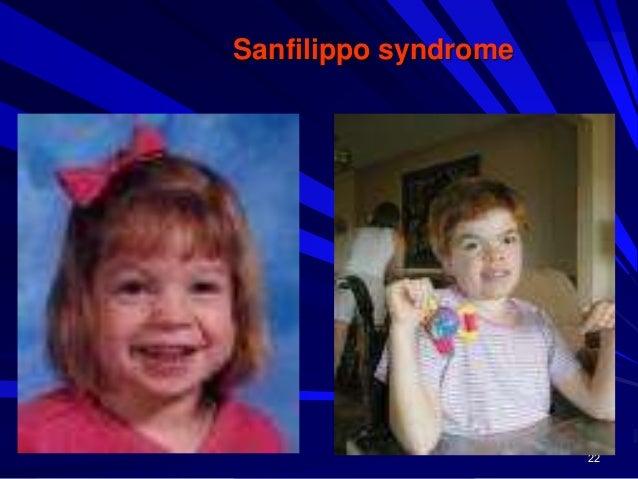 23 Morquio syndrome