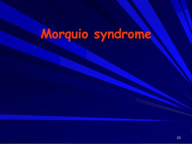 24 Morquio syndrome Skeletal abnormality - hand