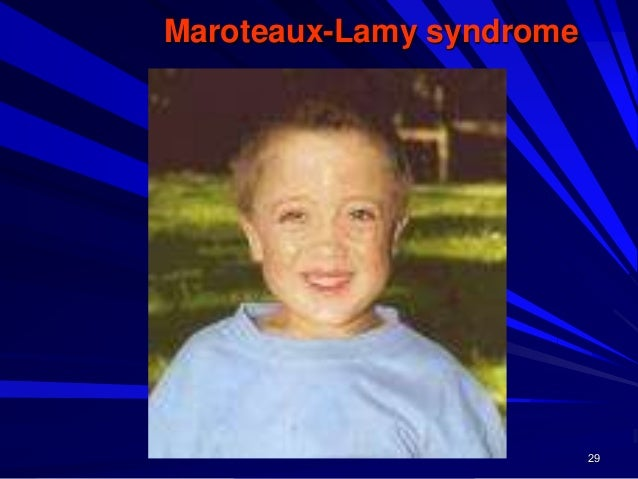 30 Features and Characteristics Maroteaux-Lamy syndrome Coarse facial features