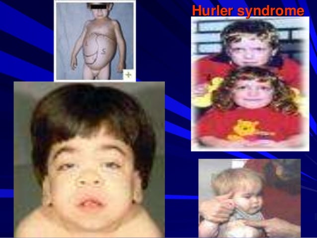 10 Hurler syndrome