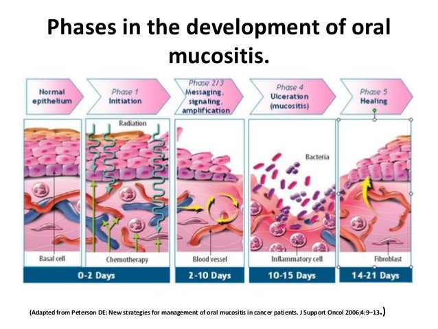 Cancer Therapy Induced Mucositis