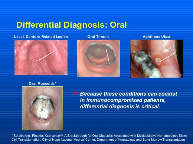 Differential Diagnosis: Oral Local, Denture-Related Lesion                     Oral Thrush                           Aphth...