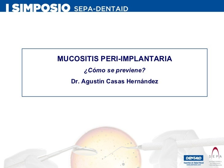 MUCOSITIS PERI-IMPLANTARIA ¿Cómo se previene? Dr. Agustín Casas Hernández