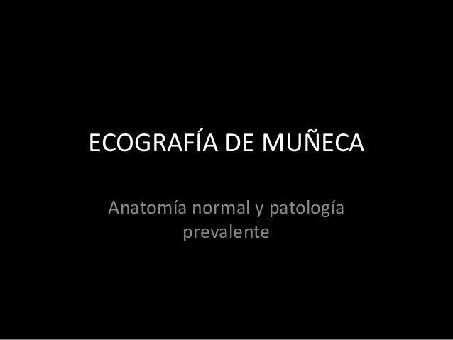 ECOGRAFÍA DE MUÑECA Anatomía normal y patología prevalente