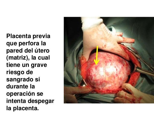 Muerte materna, cesarea y placenta previa.