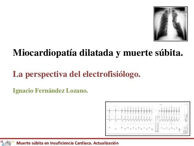 Muerte súbita en Insuficiencia Cardiaca. Actualización Miocardiopatía dilatada y muerte súbita. La perspectiva del electro...