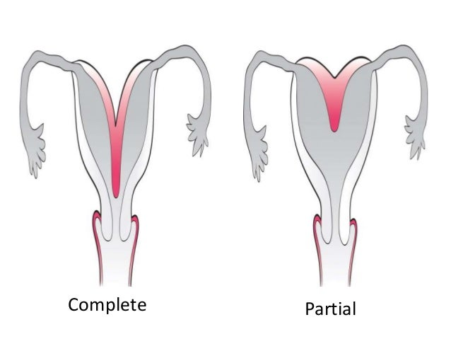 Posts, Rollers and Bicornuate uterus on Pinterest
