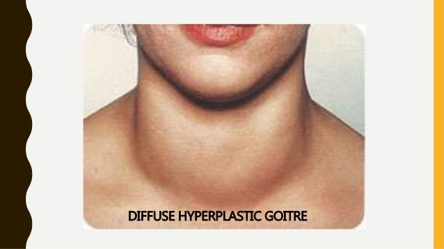 goitre benign thyroid nodules Both diffuse and nodular goiters are usually caused by an imbalance  most thyroid nodules are benign, but about 2 or 3 in 20 are cancerous.