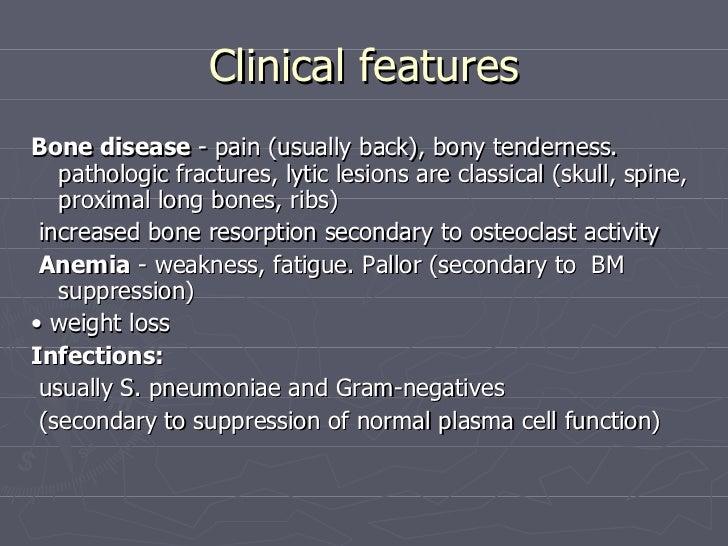 Medicine Multiple Myeloma Dr Sabir