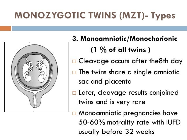 Multiple pregnancy for 4th year med  students
