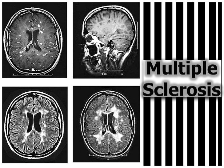Multiple Sclerosis<br />
