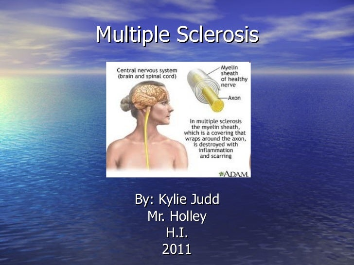 Multiple Sclerosis By: Kylie Judd Mr. Holley H.I. 2011