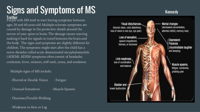 multiple sclerosis, Skeleton