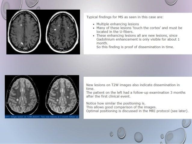 Imaging in Multiple sclerosis