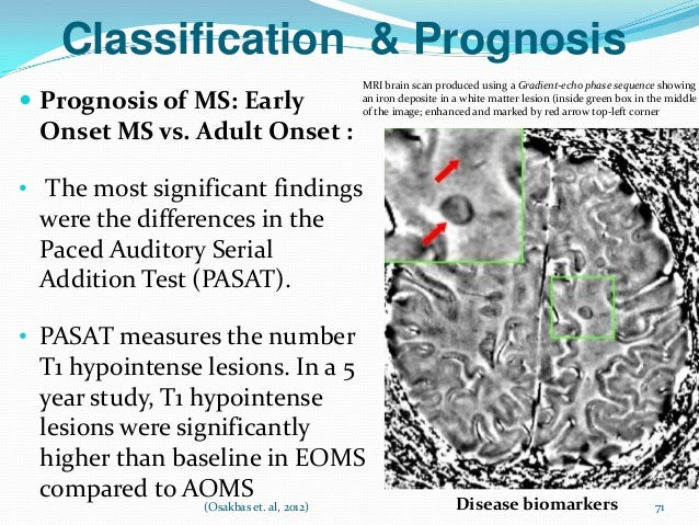 Adult onset multiple sclerosis