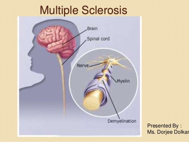 Multiple sclerosis increases desire to orgasm photos 737