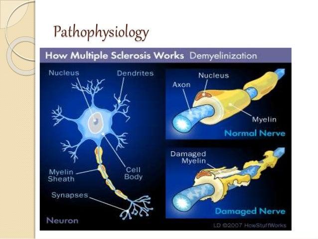 Multiple sclerosis and mysthenia gravis