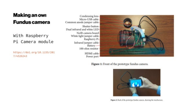 Portable Multispectral Fundus Camera
