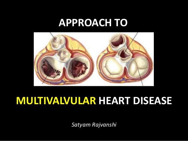 APPROACH TO MULTIVALVULAR HEART DISEASE Satyam Rajvanshi