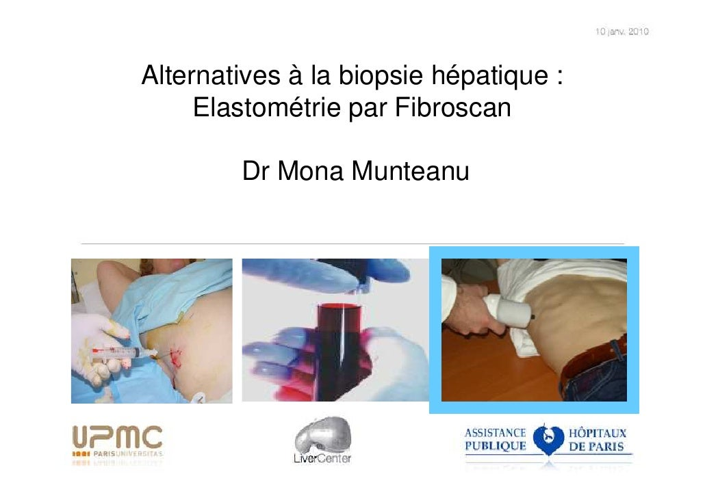 Alternatives à la biopsie hépatique :      Elastométrie par Fibroscan          Dr Mona Munteanu