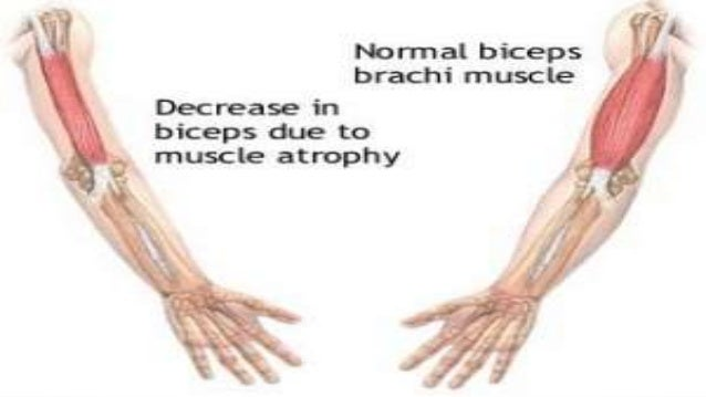 skeletal muscle atrophy, Muscles