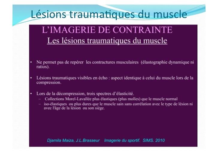 Imagerie des Lésions Musculaires