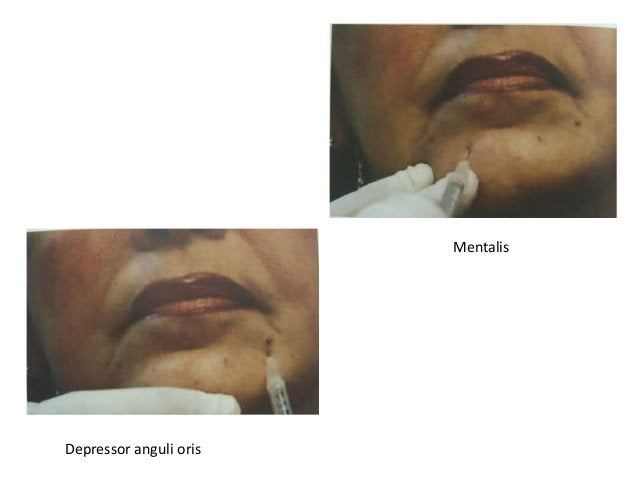 Muscles of facial expression