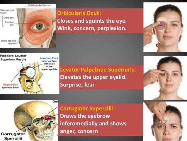 Facial expression caused by the corrugator supercilii muscle