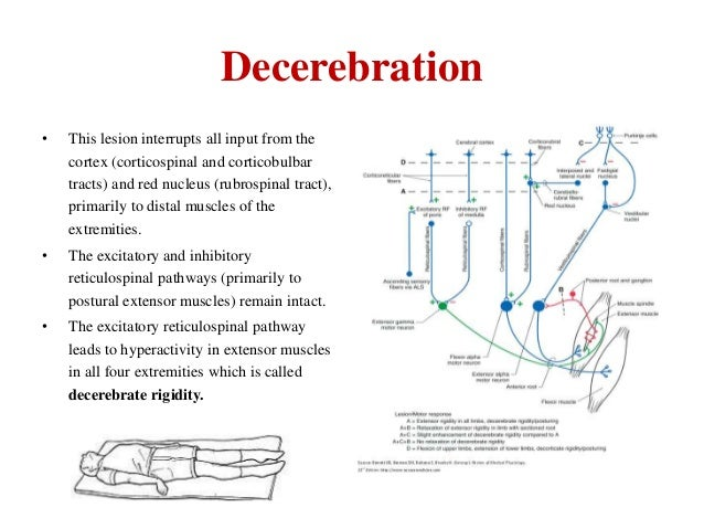 Decerebration •  This lesion interrupts all input from the cortex (corticospinal and corticobulbar tracts) and red nucleus...