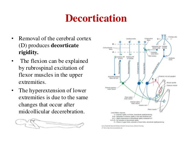 Decortication • Removal of the cerebral cortex (D) produces decorticate rigidity. • The flexion can be explained by rubros...