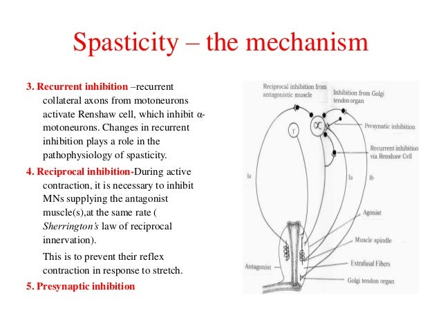 Spasticity – the mechanism 3. Recurrent inhibition –recurrent collateral axons from motoneurons activate Renshaw cell, whi...