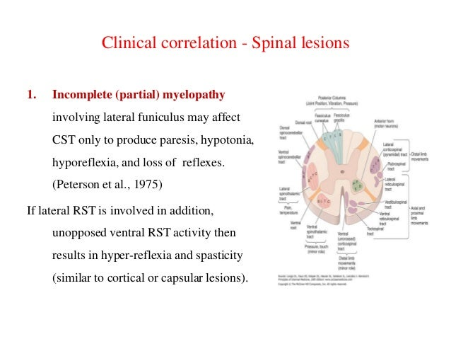 Clinical correlation - Spinal lesions 1.  Incomplete (partial) myelopathy  involving lateral funiculus may affect CST only...