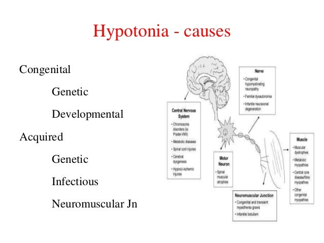 Hypotonia - causes Congenital  Genetic Developmental Acquired Genetic Infectious  Neuromuscular Jn