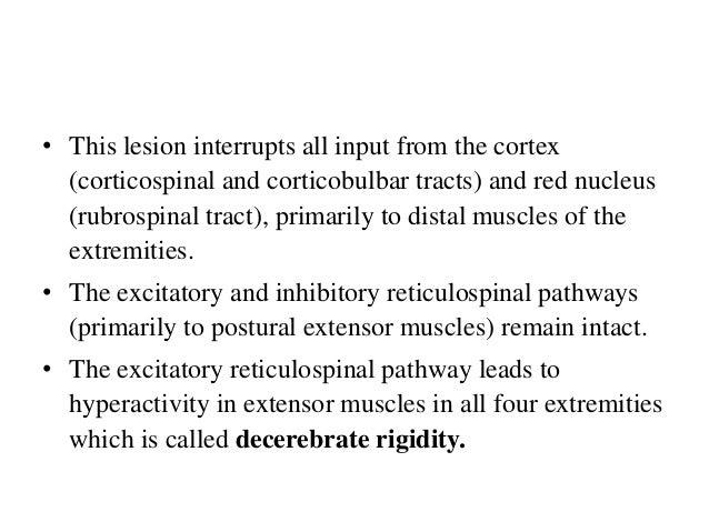 Decorticate Posture • Aka flexor posturing. Patients with decorticate posturing present with the arms flexed, or bent inwa...