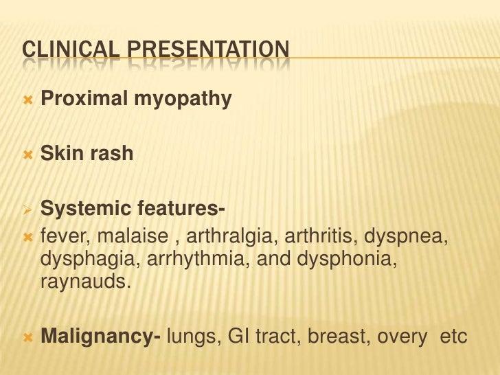 steroid induced myopathy icd-9 code
