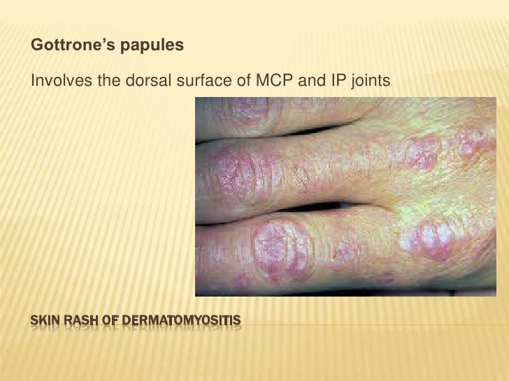 steroid induced osteoporosis medscape