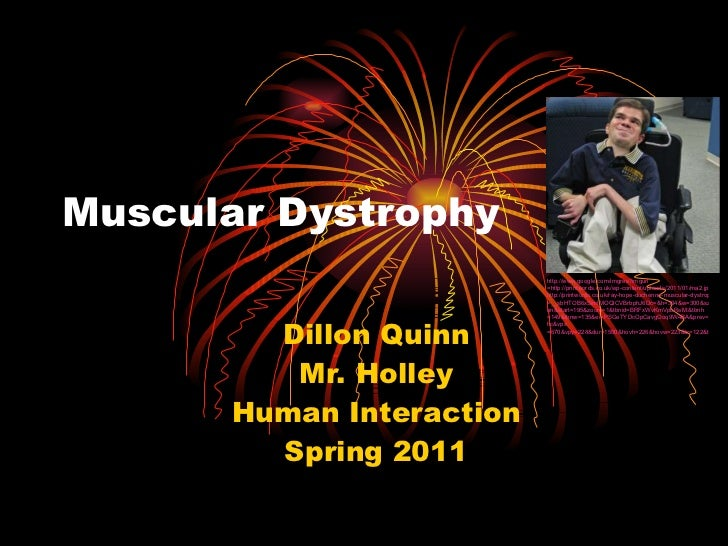 Muscular Dystrophy Dillon Quinn Mr. Holley Human Interaction Spring 2011 http:// www.google.com/imgres?imgurl =http://prin...