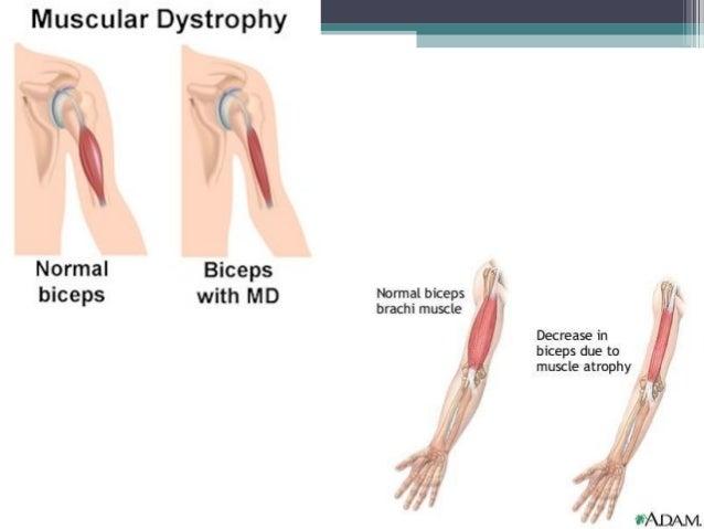Muscular Dysrophy 90