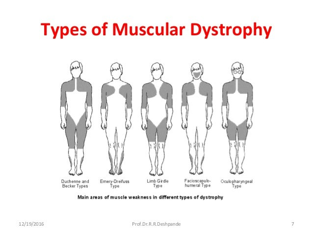 Muscular Dystrophy Related Keywords & Suggestions ...