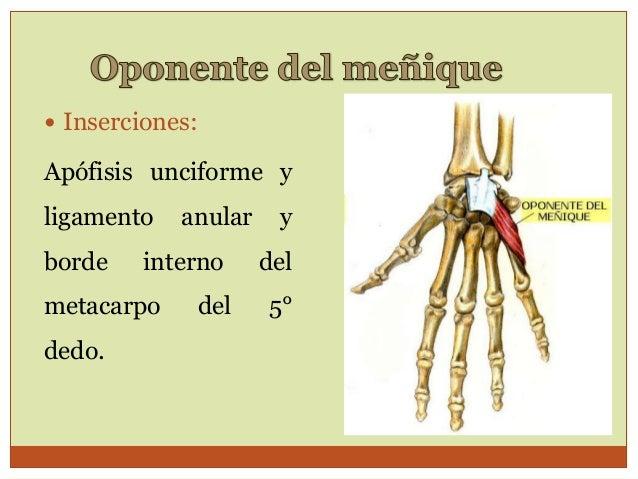 Sublussazione metacarpo-falangea del primo raggio del primo dito mano destra