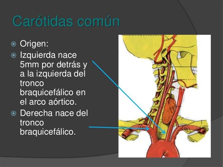 Triángulo carotideo<br />Seno carotideo<br />Bifurcación carotidea<br />Nervio vago<br />Vena yugular interna<br />