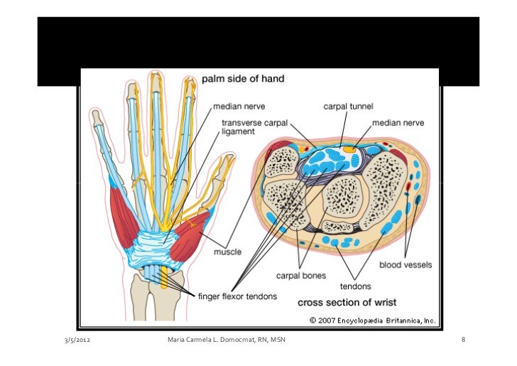Musculoskeletal Disorders Part 4 Disorders Of The Hands Carpal Tunn