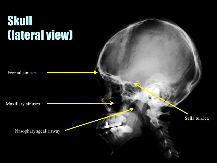 Musculoskeletal Imaging 09