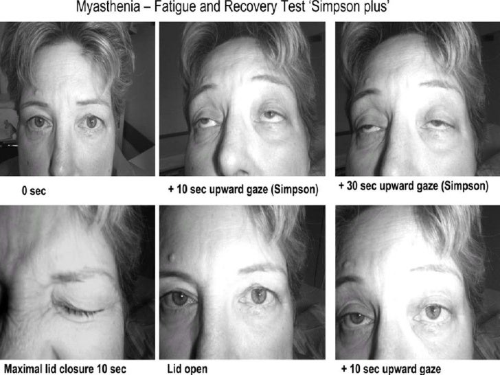 myasthenia gravis Mgmn strives to: convey information and links to resources about myasthenia  gravis (mg) connect people with mg—and their families, friends and.